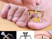 Instrument pentru unghii încarnate